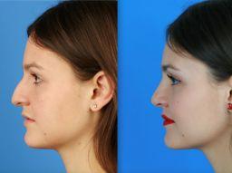 cinco-cosas-que-debes-saber-antes-de-operarte-de-la-nariz